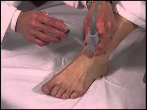 Scanning Technique: Ultrasound-Guided Foot Injection - SonoSite
