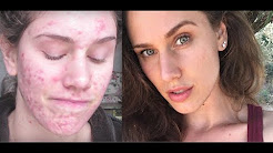 hqdefault - Stress Induced Cystic Acne