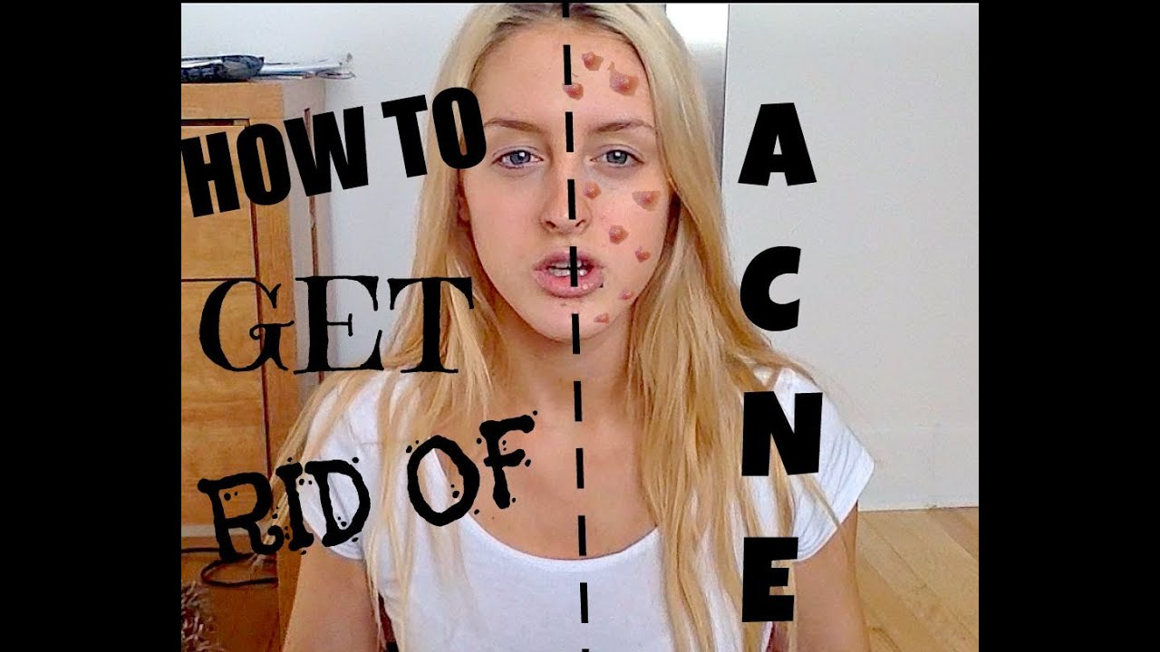 how to get rid of acne fast youtube