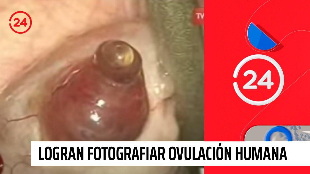 que sintomas se siente cuando estas ovulando