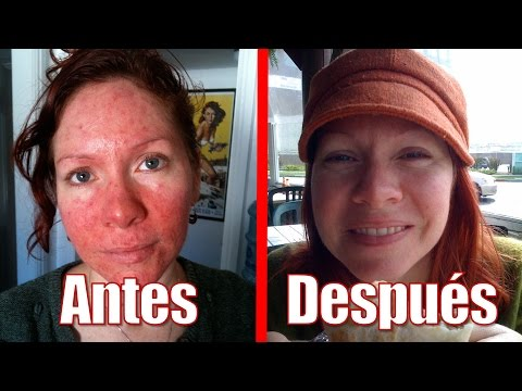 ¿Tienes Rosácea En La Cara? Elimínala NATURALMENTE Con Este Remedio Casero 100% Efectivo
