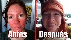 hqdefault - Tratamiento Natural Acne Rosacea