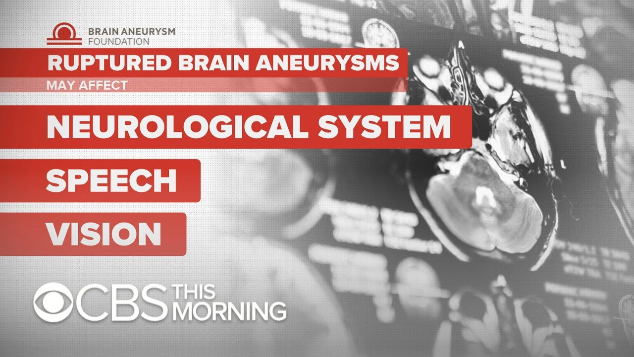"Brain aneurysms ""can happen at any age,"" doctor says"