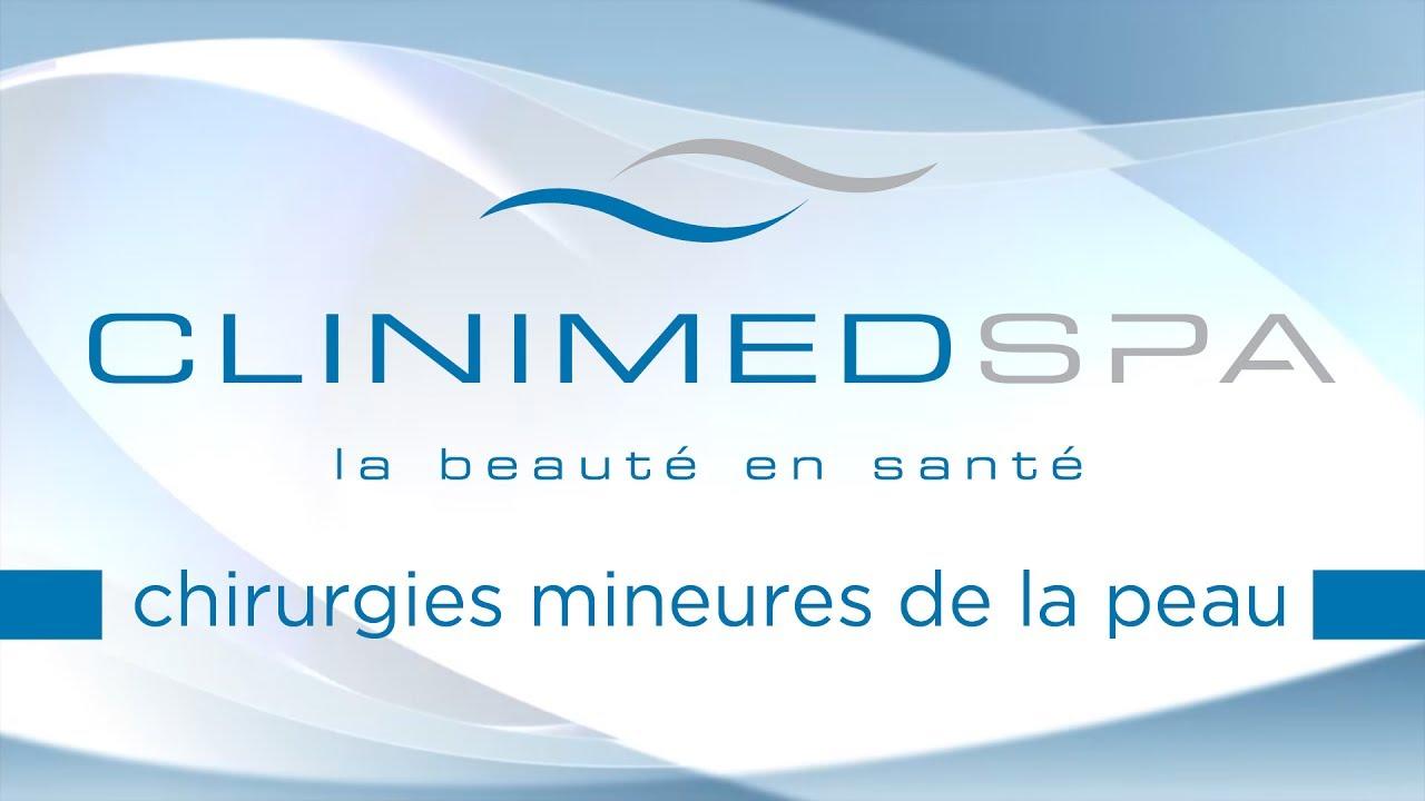 Naevus Au Laser Pour Grains De Beauté Clinimedspa Quartier
