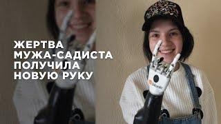 Жене подмосковного Отелло установили руку робота