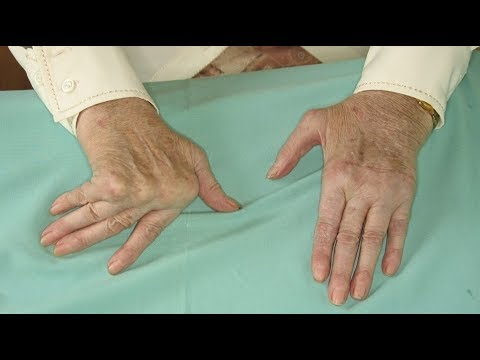 7-natural-remedies-for-arthritis-in-the-hands