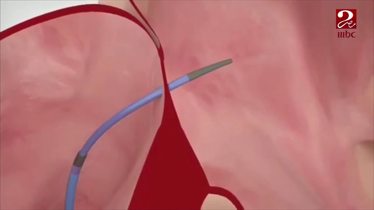 في حال فشل العلاج بالأدوية ... فيديو توضيحي لعلاج الارتجاف الأذيني