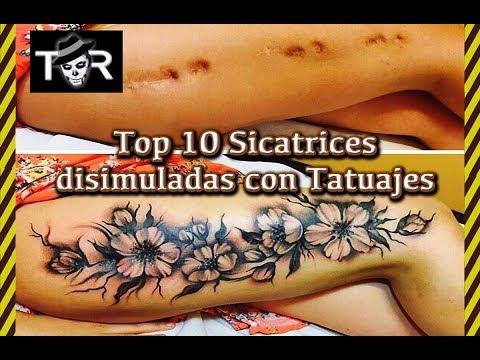 10 Cicatrices Disimuladas por Tatuajes