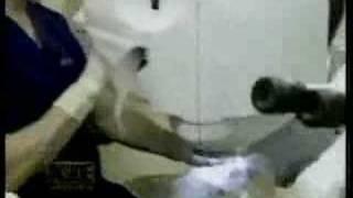Lasik Surgeon Los Angeles Dr Robert Maloney Extreme Makeover