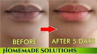 काले होंठो को 5 दिनों में प्राक्रतिक गुलाबी बनाने के नुस्खे | Remove darkness from lips Forever