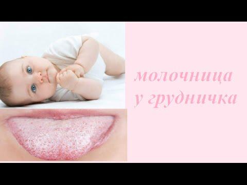 молочница у грудного ребёнка