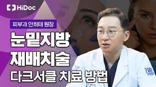 [전문의 건강 Q&A] 다크서클 치료인 '눈밑지…
