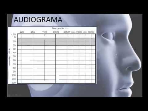 audiometria-normal