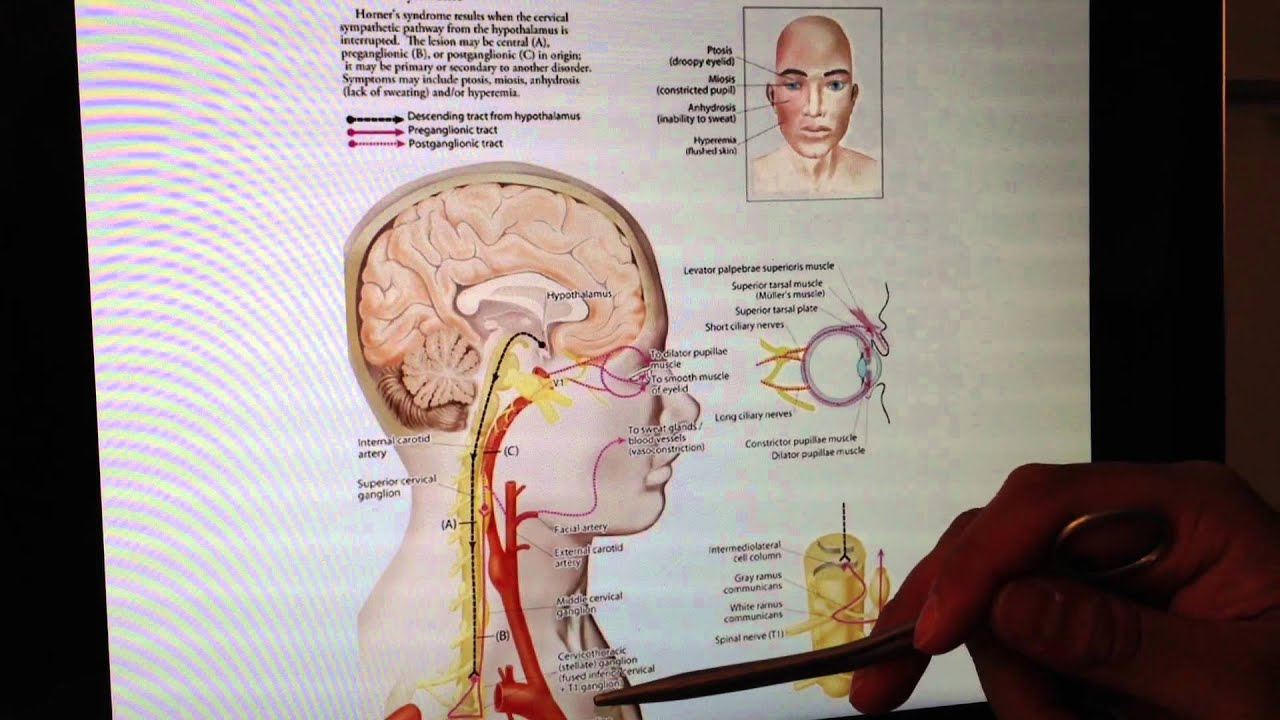ANS (1 of 7): Principles of the ANS in the Head and Neck -- Head and ...