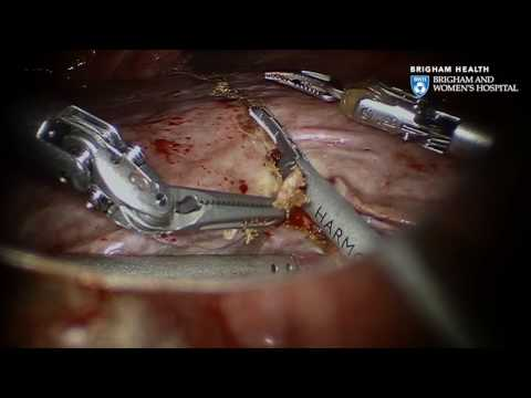 Liver Cancer: Robotic Hepatectomy Video - Brigham and Women