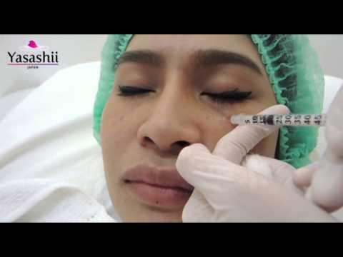 Review :: Filler แก้ไขปัญหาร่องลึกใต้ตา by Yasashii Clinic