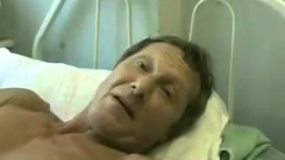 Человек умирает от бешенства