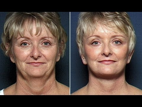 non surgical face lift tape