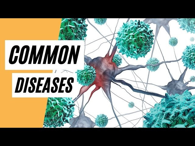Common Diseases Today  (Diseases)