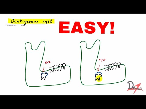Dentigerous cyst made easy!