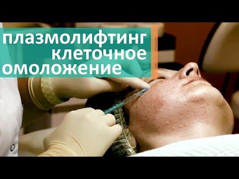 Плазмолифтинг. 💉 В каких случаях нужна процедура плазмолифтинга. Клиника Lege Artis