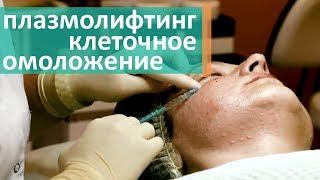 видео Мезотерапия или биоревитализация: что лучше, показания, противопоказания, длительность результата