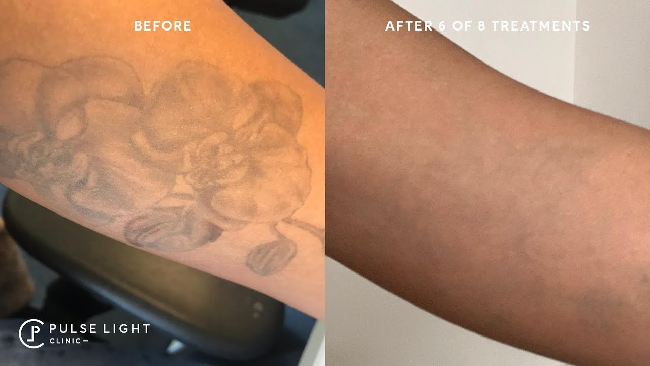 GETTING RID OF MY TATTOOS FOREVER - Tattoo Removal on Dark Skin ...