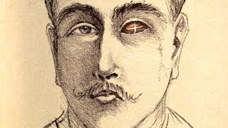 Transplantation and the Eye - Professor William Ayliffe thumbnail