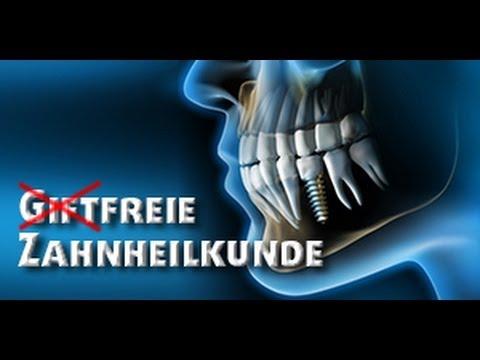 Giftfreie Zahnheilkunde: Schulterschmerzen, Herzrasen, Gedächtnisstörungen: Fälle für den Zahnarzt?