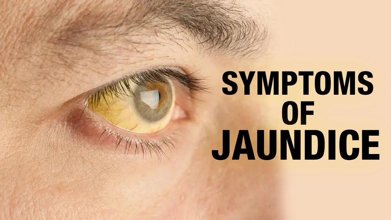 Symptoms of Jaundice || Symptoms Checker || Devika - YouTube