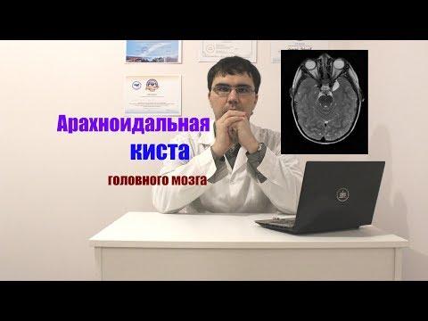 Арахноидальная ликворная киста головного мозга: симптомы, лечение