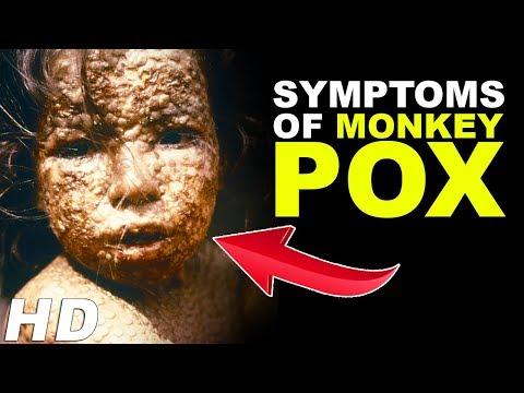 Monkey Pox Virus - Monkey Pox Outbreak  | Symptoms Of Monkeypox | Infectious Disease