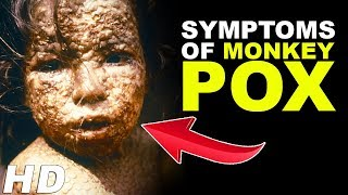 Monkey Pox Virus - Monkey Pox Outbreak  | Symptoms Of Monkeypox | Infectious Disease