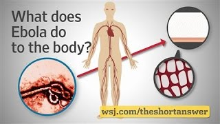 Ebola: What Does It Do Inside the Body?