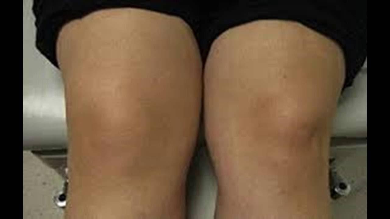 Dolor rodilla hinchada con