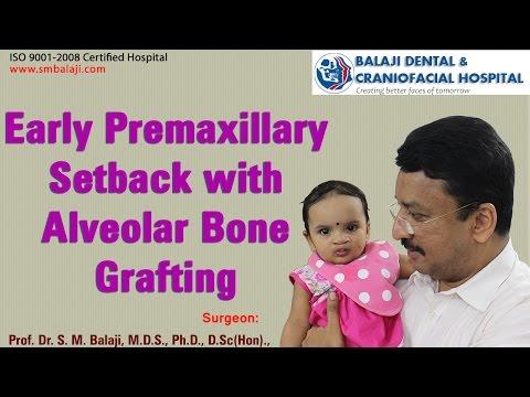 Early Premaxillary Setback with Alveolar Bone Grafting - Dr. S.M Balaji