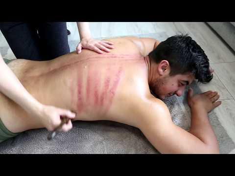 МАССАЖ ГУА-ША. Back massage gua sha