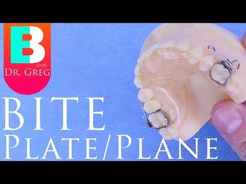 Bite Plate / Bite Plane for Braces