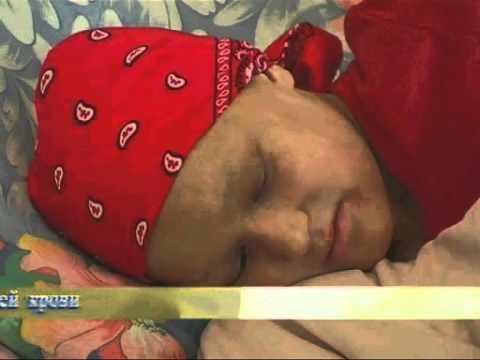 Детская онкология. Лечение