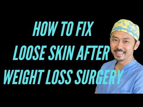 """""""Loose Skin After Weight Loss Surgery""""--Real Talk With Dr. V"""