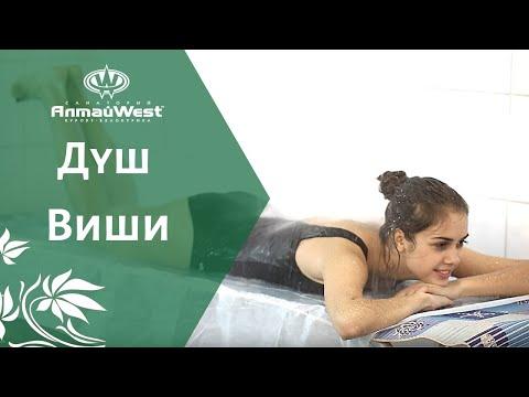 Душ Виши в санатории Алтай-West