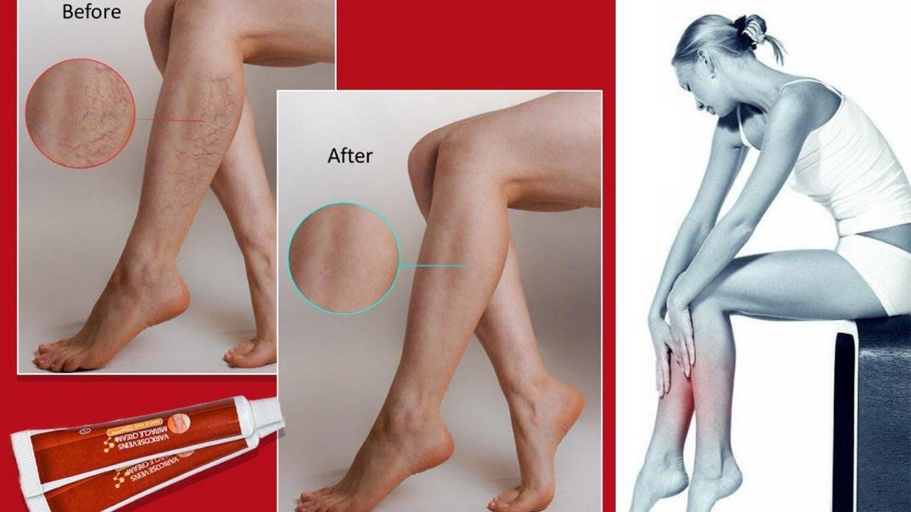 ✿ Picioare frumoase fără vene varicoase: este atât de simplu? - 【Bolile de vindecare】 -