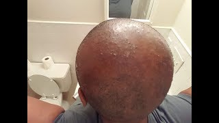 How To Cure Scalp Inflammation, Bumps and Blisters ( CCCA Alopecia/Folliculitis)