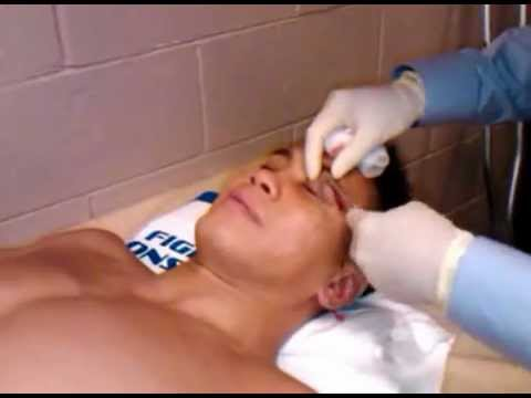 Cung Le UFC 148 - Gets his stitches