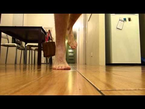 fused-ankle-walking-barefoot