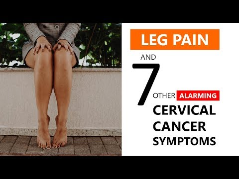 Cervical Cancer Leg Pain Symptoms + 🛑 7 Alarming Signs