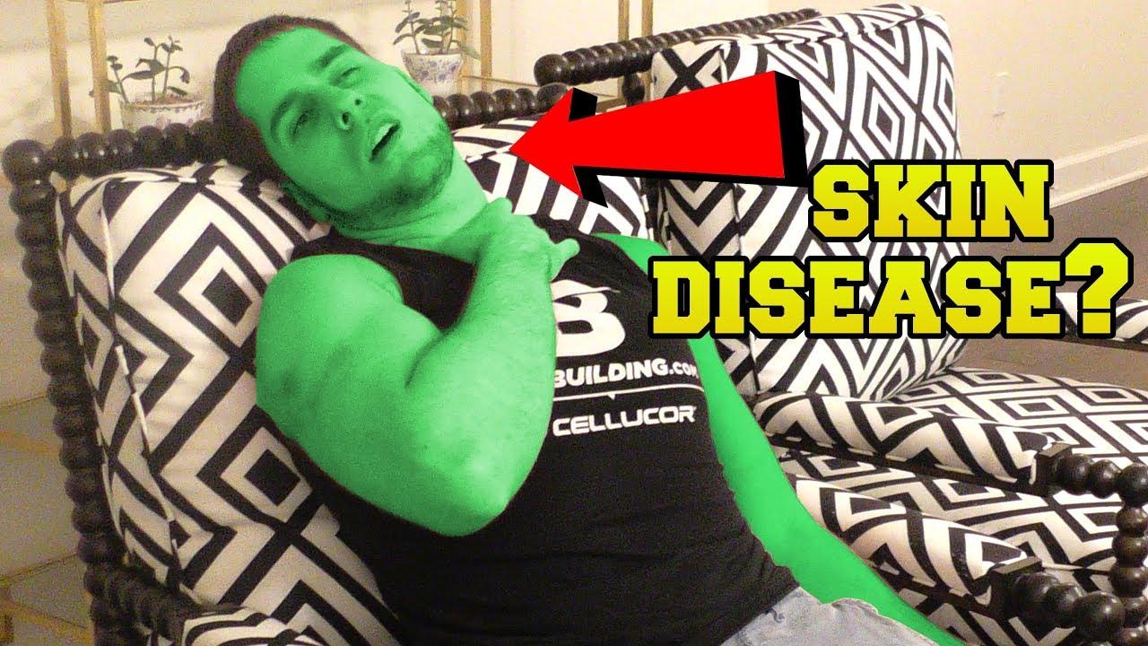 I HAVE A SKIN DISEASE!?