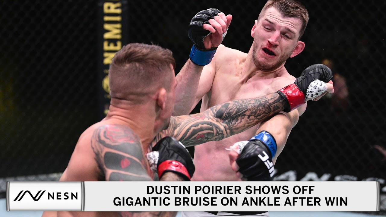 Dustin Poirier Shows Off Gruesome Bruise On Ankle After Dan Hooker Win