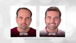 How to Prevent Hair loss | Hair Loss Tips |  Hair Growth Cycle