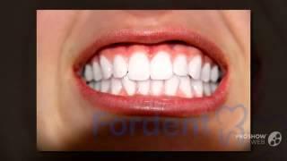 отбеливание зубов цены   - White Light для отбеливания(http://rabotadoma.luzani.ru/karandash/ Эффективная система отбеливания зубов Если у вас большое почернение зубов приме..., 2014-09-14T06:55:40.000Z)